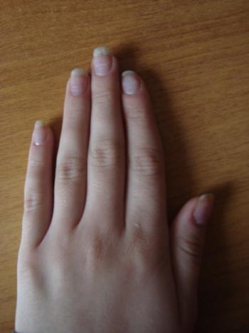 Как сделать так чтобы ногти росли быстро