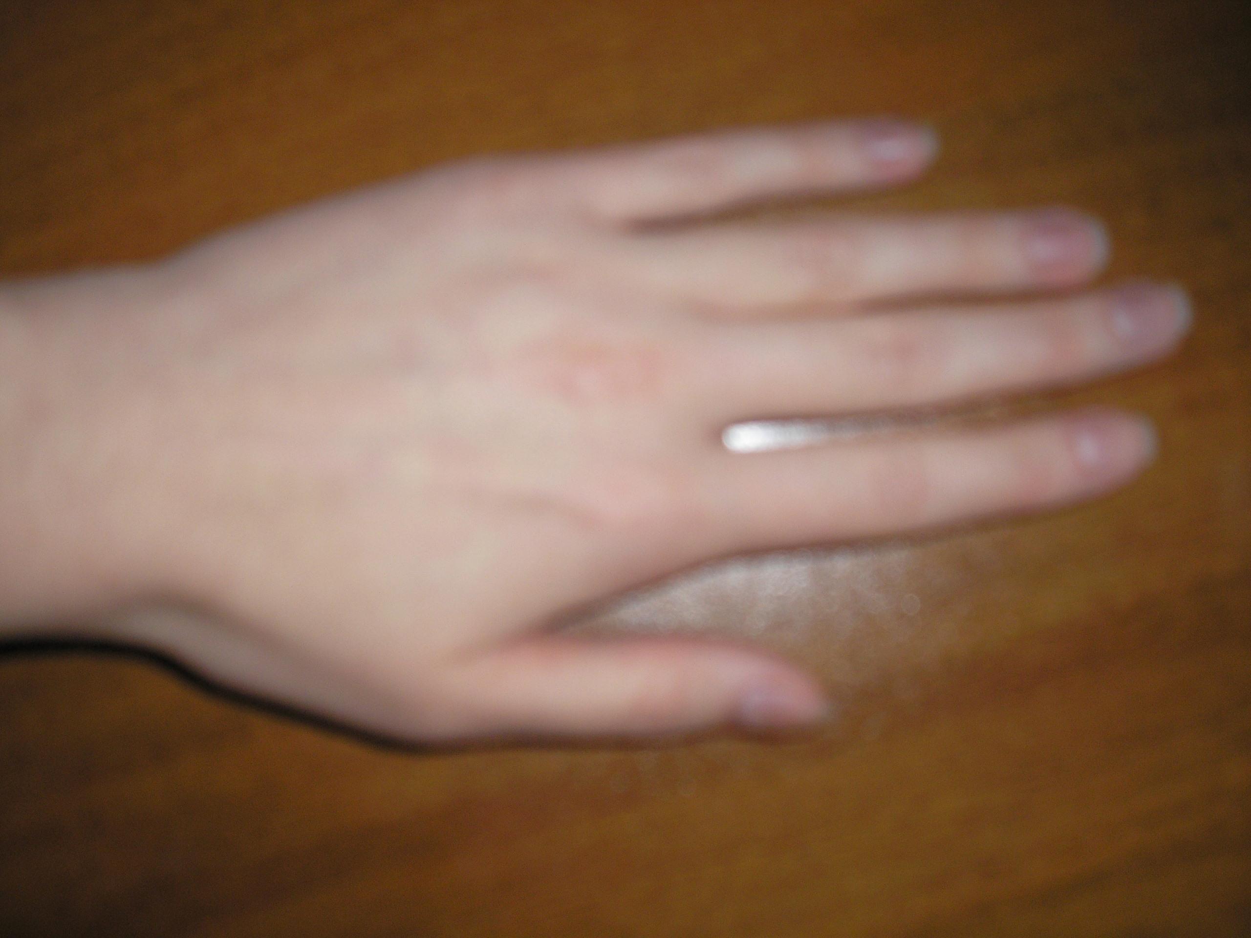 У ребенка слезают ногти на руках и ногах фото