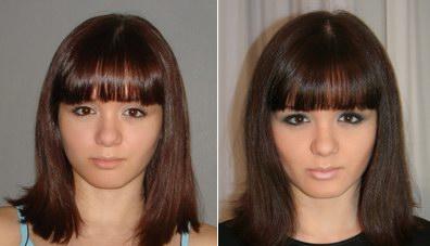 Что уменьшает выпадение волос